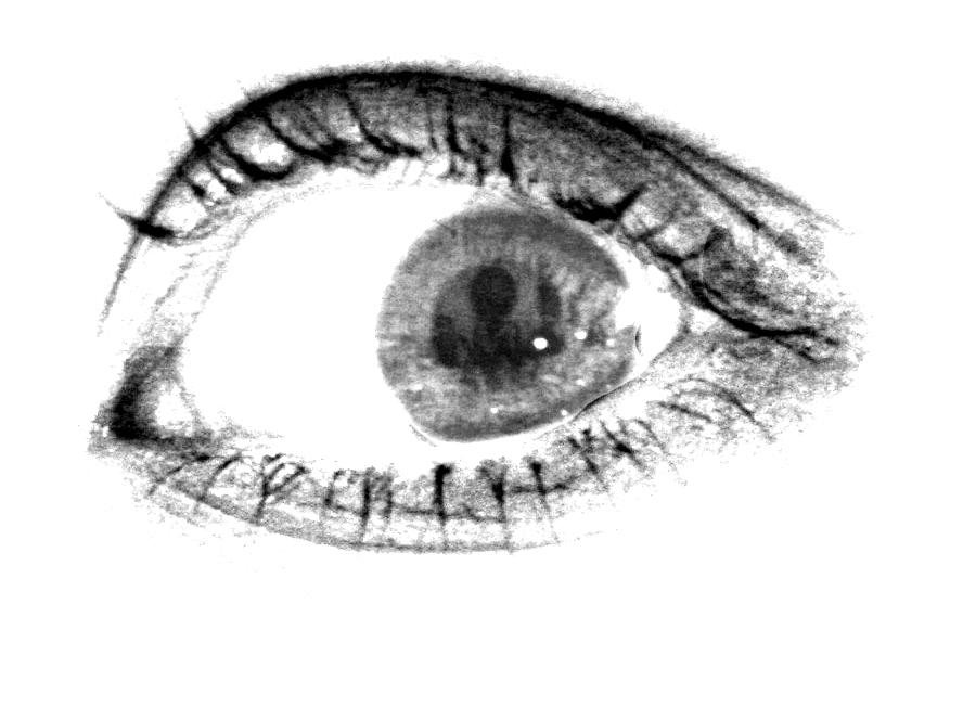 2008-03 Auge
